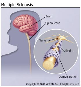 Multiple Sclerosis. MS, Extreme tiredness, Dizzy, Dizziness, Weak, Fog