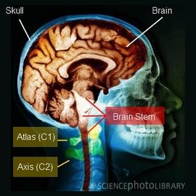 NUCCA Chiropractors Help Brain Function